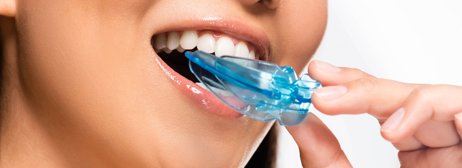 A woman is using her athletic mouth guard